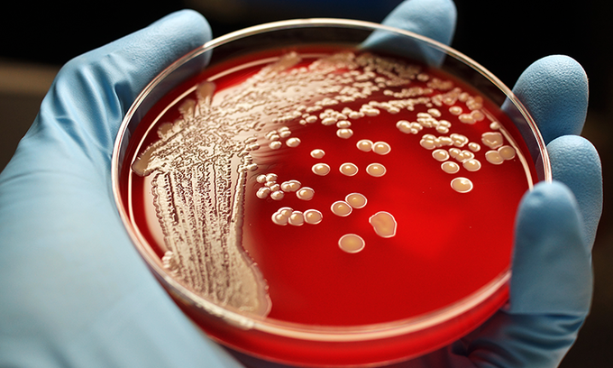 Scientists develop new compound which kills both types of antibiotic resistant superbugs