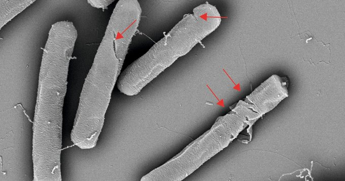 New nanomaterial for treatment of skin infections